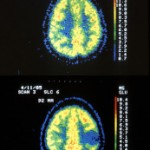 PET-Scan1